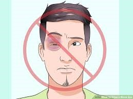 man with black eye graphic
